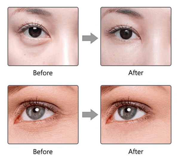 So sánh máy massage mắt Sunmay và Lifetrons, hiệu quả sau khi sử dụng máy massage mắt