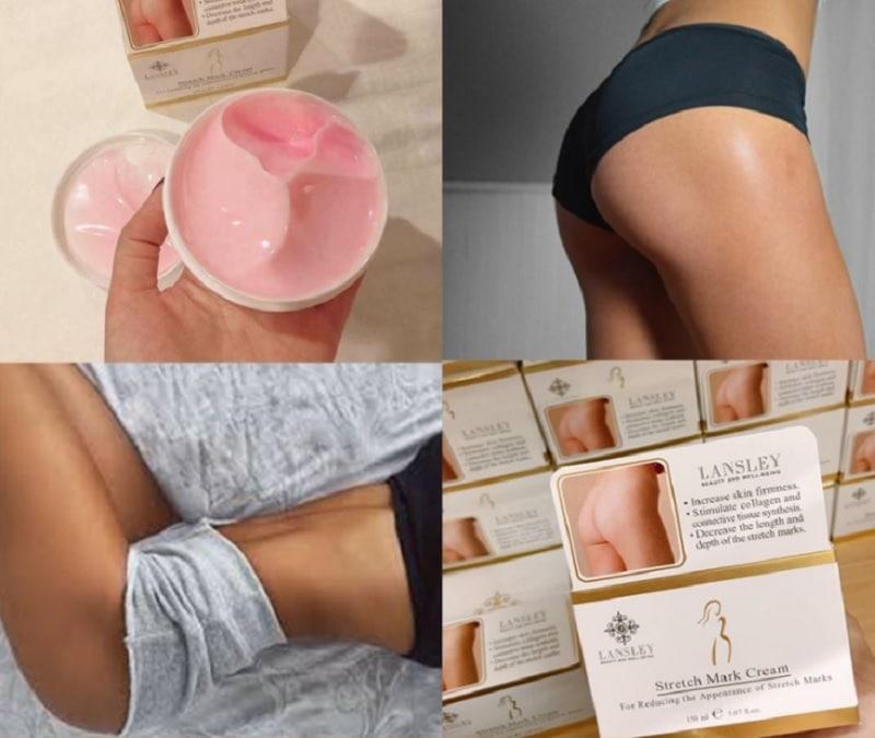 Đánh giá Top 5 kem trị thâm mông cho nữ. Kem trị thâm mông tốt nhất hiện nay. Kem trị thâm mông Lansley
