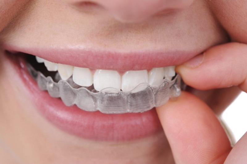 Dụng cụ niềng răng tại nhà Silicon trainer. Niềng răng trainer cho người lớn có hiệu quả không